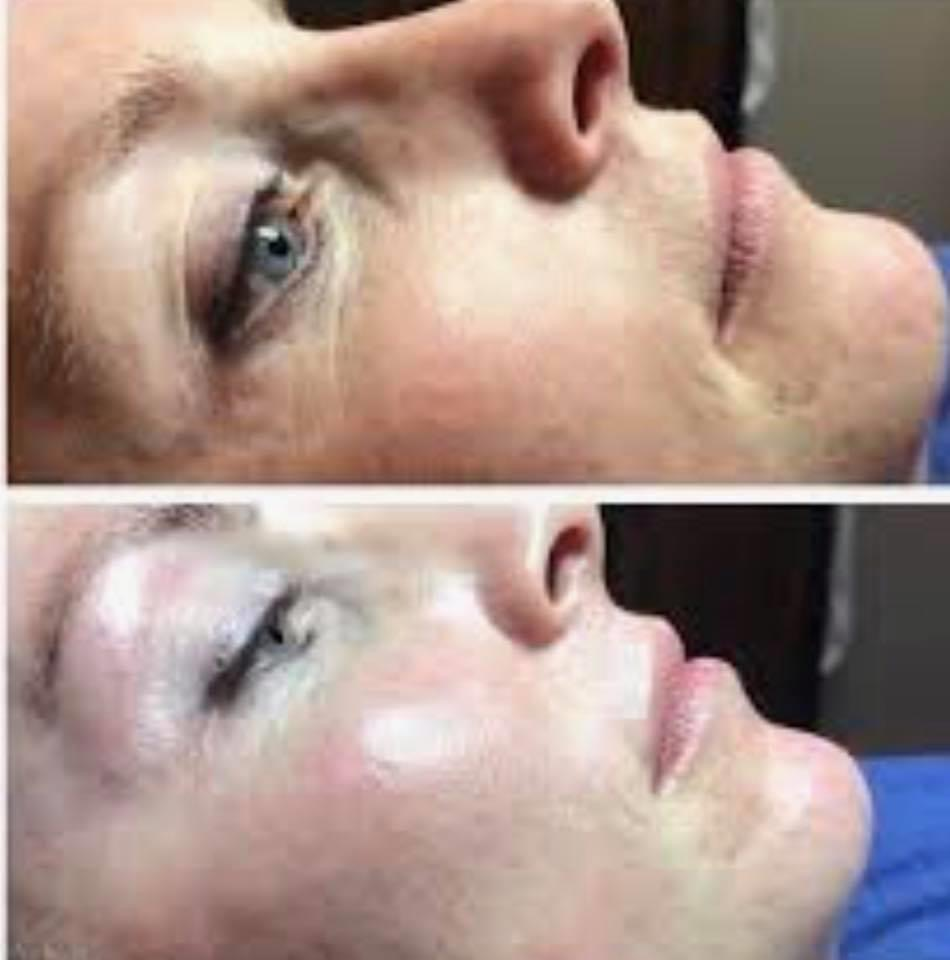 Dermaplane Glow Facial