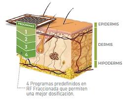 PROGRAMAS RF FRACCIONADA.png