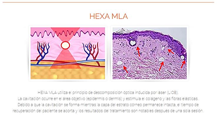 HEXA MLA.png