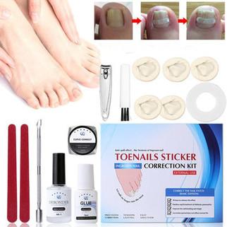 Ingrown Toe Correction Set -US$24.99