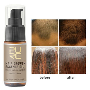 Prevent Hair Loss Nutrient Solution -US$