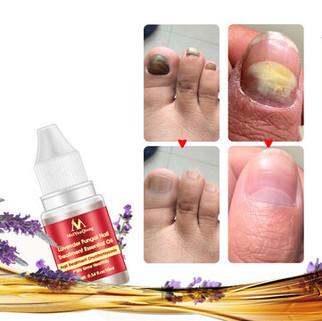 Lavender Nail Liquid Treatment -US$6.99