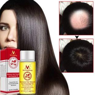 Morocco Hair Growth Essence Oil -U