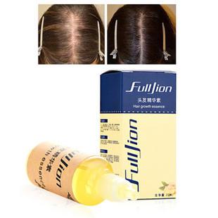 Hair Growth Essence Oil -US$5.99