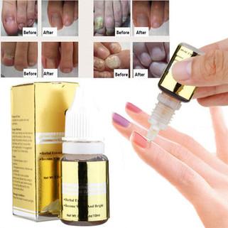 Ginseng Nail Treatment Oil -US$7.59