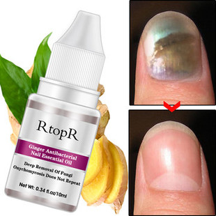 Nail Essential Oil -RM30.07