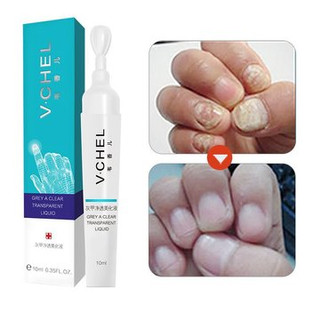 Fungal Nail Treatment -US$9.99