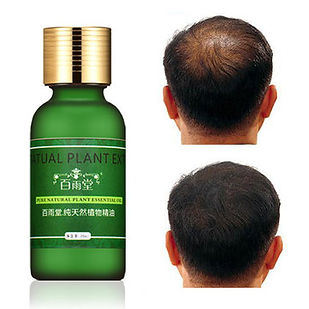 Natural Plant Pure Extract Rapid Hair Growth Essence Essential Oil Liquid Ginseng Ginger Herbal - RM52.47