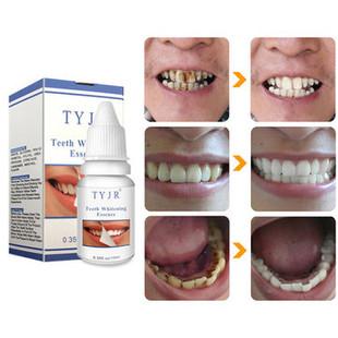 Teeth Whitening Liquid -US$7.99