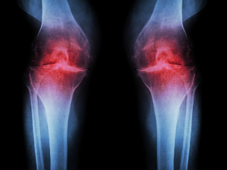 Osteoarthritis in the knees - a case of bad wheel alignment?