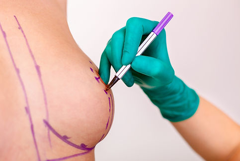 Woman breast with dotted lines before br