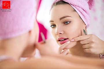 Acne - What it Is and What to Do #fightacne!