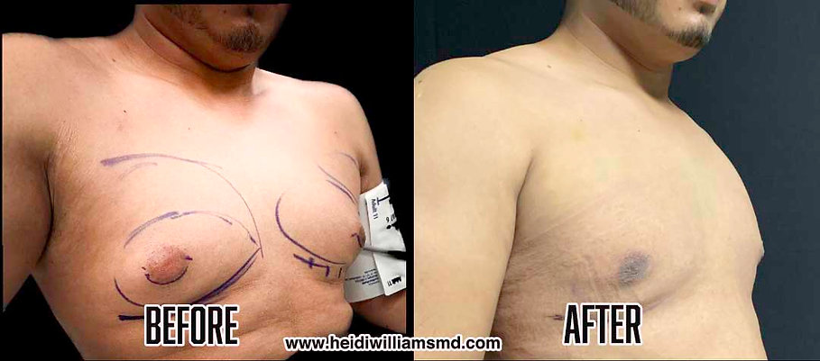 Before and After Gynecom.jpg
