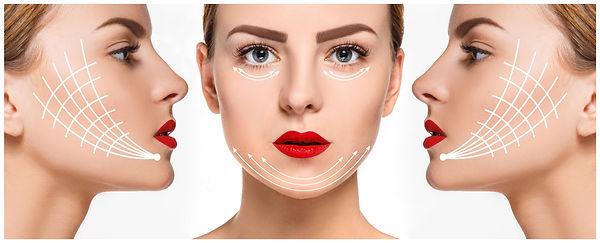 mini face lift 1.jpg
