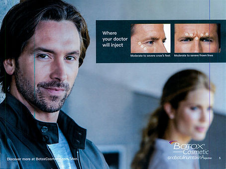 botox for men light room (2 of 7).JPG