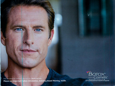 botox for men light room (6 of 7).JPG