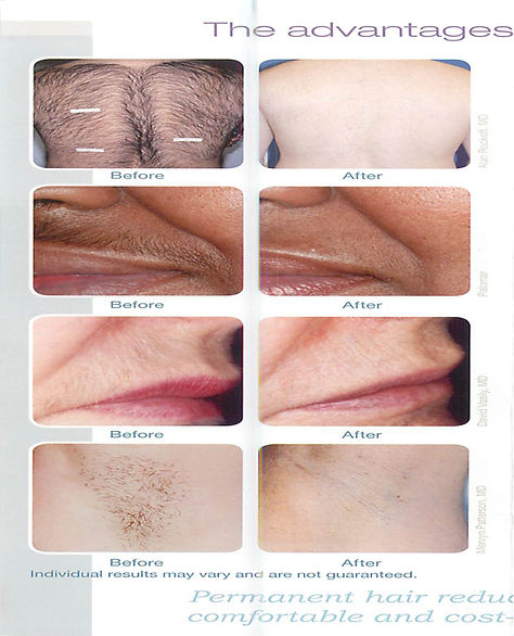hair removal (1)-2.jpg