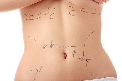 Caucasian woman's abdomen marked with li