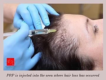 PRP - Platelet Rich Plasma for Hair Loss