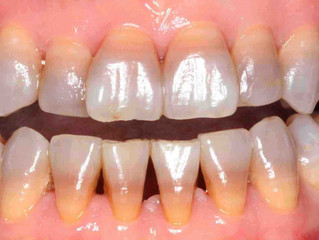 Bespoke Dental Tips: Tetracycline Staining