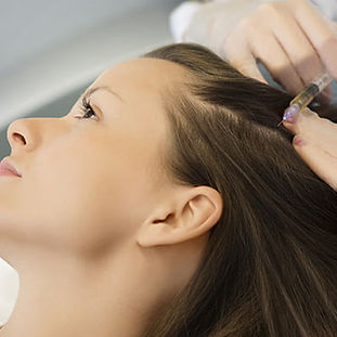 Mesotherapy-for-Hair-Growth.jpg