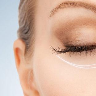 botox-eye-wrinkles.jpg