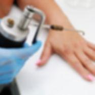 dermatologist-wart-removal.jpg