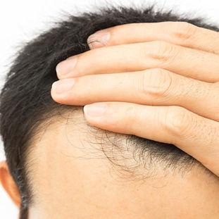 HairLoss-.jpg