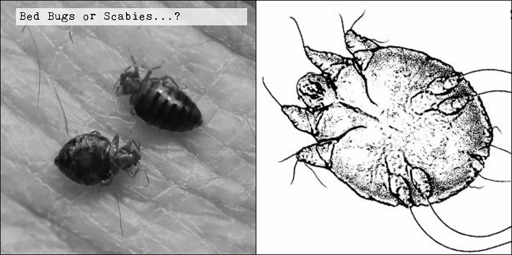 Bed Bugs V Scabies 5 Ways To Tell Scabies And Bed Bugs Apart Sterifab Bed Bug Blog