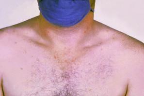 حمى التيفوئيد