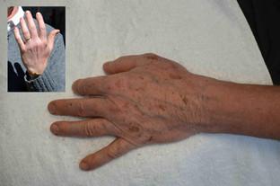 Skysharks Oldage Hand.jpg