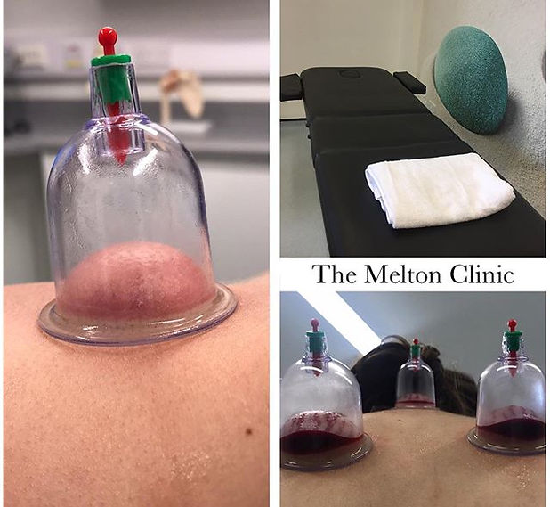 Cupping Therapy is an ancient medical tr