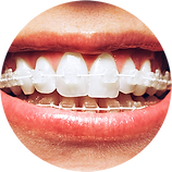 Copy of Braces2.png