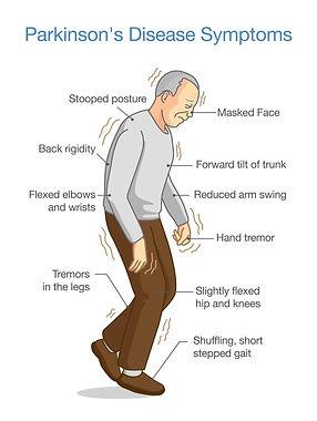 Parkinsons Fig 1 [5].jpg