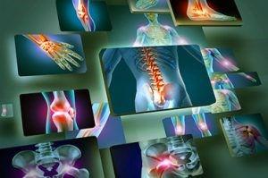 arthritis Fig 1 [4].jpg