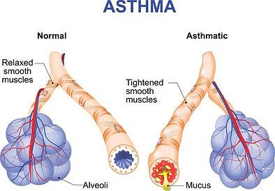 asthma Fig 2[3].png.jpg