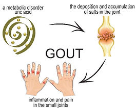 Gout Fig 1 [].jpg