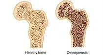 osteoporosis Fig 1[5].jpg