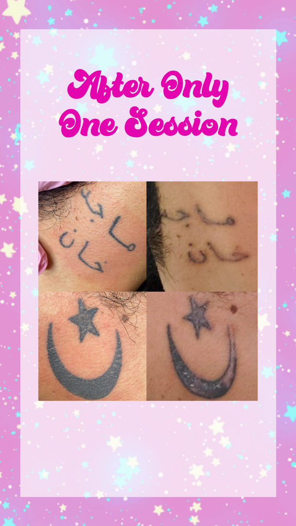 saline tattoo removal  before and after