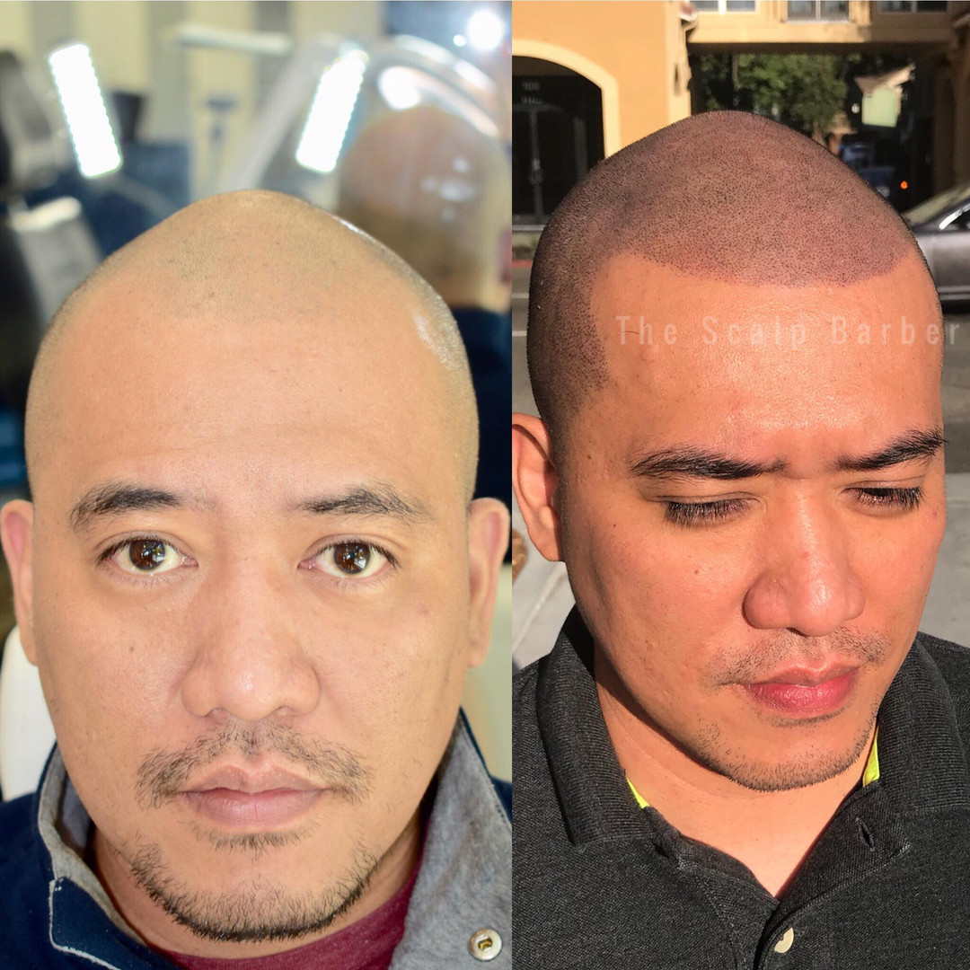 Scalp Micropigmentation Hair Tattoo Hairloss Sacrament, CA