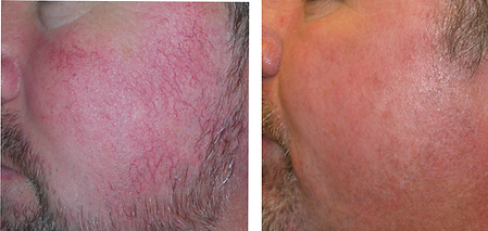 rosacea patient with broken blood vessels on face