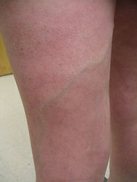 woman with varicose vein on thigh