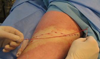 varicose vein removed-vein surgery