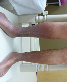 chronic venous insufficiency-stasis dermatitis