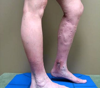 chronic venous insufficiency with leg ulcer