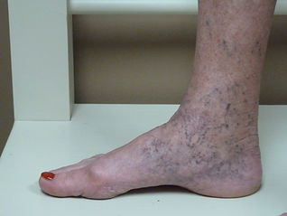 corona phlebectasia from venous insufficiency