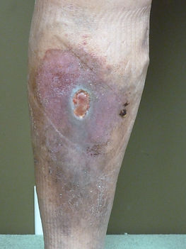 venous ulcer from varicose veins