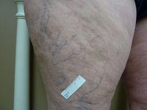 reticular telangiectasia spider veins on leg