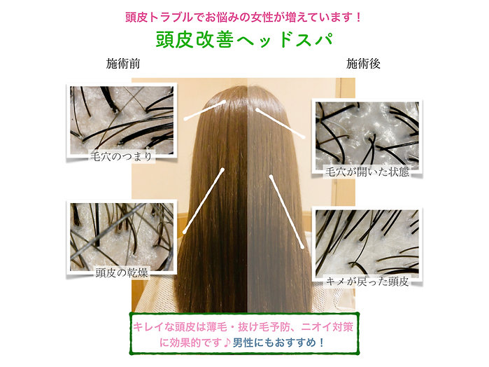 頭皮改善ヘッドスパ女性ver2のコピー.001.jpeg