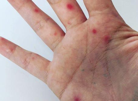Boala mână gură picior